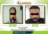 Before-After frame 32 Karan sidhu