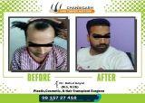 Before-After frame Harish Gautam2
