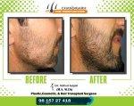 Beard Before-After frame 2