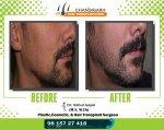 Beard Before-After frame 3