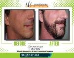 Beard Before-After frame 5